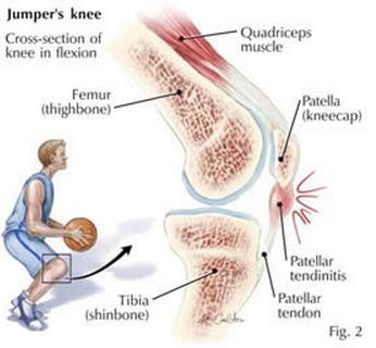 Knee Injuries Treatments Neworleans